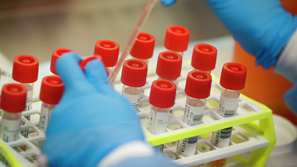 В США начали проводить тест на антитела к коронавирусу