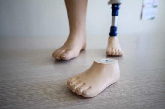 Почему инвалидам не хватало протезов